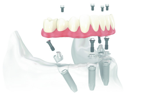 Diagram of All-On-4 Dental Implants - Simon Choyee, DDS Whittier, CA